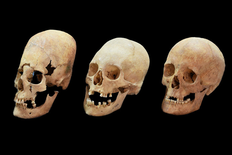 Elongated skulls found in Southern Germany